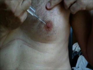 乳頭鹽水注射